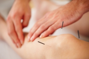 calmer_clinics_acupuncture